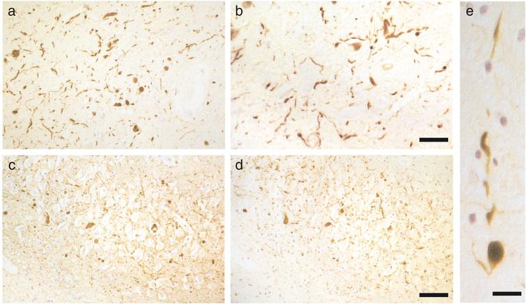 The α-synuclein pathology of  dementia with Lewy bodies. (a,b) α-Synuclein-positive Lewy bodies and Lewy neurites in substantia nigra.  Scale bar, 100μm. (c,d) α-Synuclein-positive Lewy bodies and Lewy neurites in hippocampus. Scale  bar, 80μm. (e) α-Synuclein-positive Lewy body inside a  Lewy neurite in substantia nigra. Scale bar, 40μm. From Spillantini et al. [58].