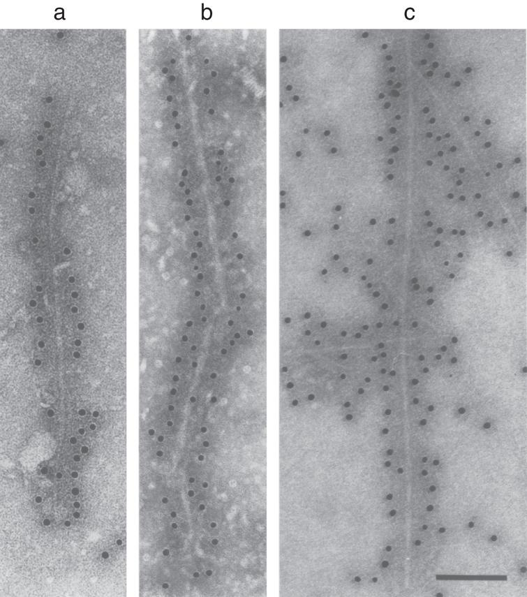 Filaments extracted from the brains of patients with dementia with Lewy bodies (a) and multiple system atrophy (b) or assembled from bacterially expressed human α-synuclein (c) were decorated by an anti-α-synuclein antibody. The gold particles conjugated to the secondary antibody appear as black dots. From Goedert and Spillantini [206].