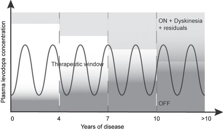 Proposed pattern of motor response to levodopa over the time. This pattern suggests that some residual cardinal motor features of PD (i.e., bradykinesia, rigidity, postural instability and tremors) remain present in the therapeutic window, and could even overlap with dyskinesia.