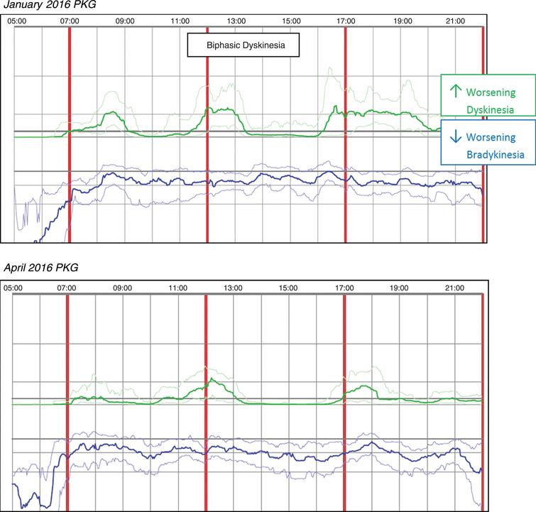 Patient No 18 January 2016 and April 2016 PKG. PKG Summary Plot depicts data from recording day aligned to the time of day. It shows when reminders were given (vertical red lines), the median DKS (heavy green line) and median BKS (heavy blue line) and their corresponding 25th and 75th percentiles plotted against time of day.