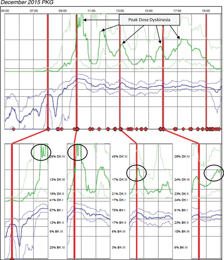 Patient 145 December 2015 PKG: PKG Summary Plot depicts peak dose dyskinesia. Top Image - PKG Summary Plot: Depicts data from recording day aligned to the time of day. It shows when medication reminders were given (vertical red lines), the median DKS (heavy green line) and median BKS (heavy blue line) and their corresponding 25th and 75th percentiles plotted against time of day. Bottom Image - PKG Dose Response Curves: Depicts data from recording day aligned to the time of medication acknowledgement for each individual dose. Programmed medication doses are depicted by vertical red lines. Also illustrated are the median DKS (heavy green line) and median BKS (heavy blue line) and their corresponding 25th and 75th percentiles plotted against time of day.