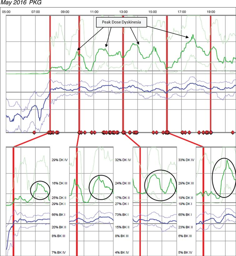 Patient 145 May 2016 PKG. PKG Summary Plot depicts peak dose dyskinesia. Top Image - PKG Summary Plot: Depicts data from all recording day aligned to the time of day. It shows when reminders were given (vertical red lines), the median DKS (heavy green line) and median BKS (heavy blue line) and their corresponding 25th and 75th percentiles plotted against time of day. Bottom Image - PKG Dose Response Curves: Depicts data from recording day aligned to the time of medication acknowledgement for each individual dose. Programmed medication doses are depicted by vertical red lines. Also illustrated are the median DKS (heavy green line) and median BKS (heavy blue line) and their corresponding 25th and 75th percentiles plotted against time of day.