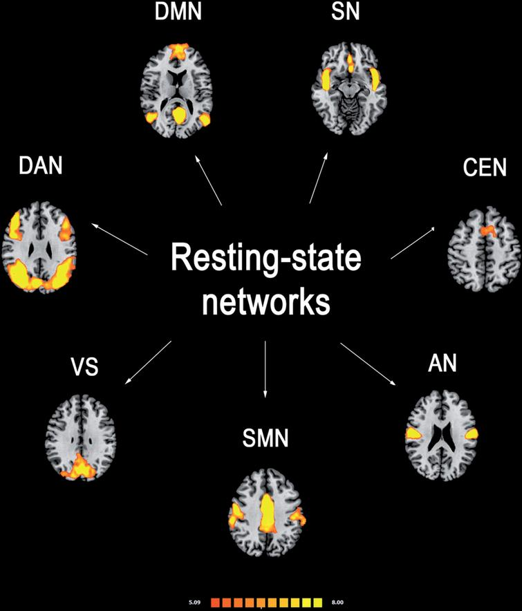 Most reported resting-state functional connectivity networks in healthy controls. Mean resting-state functional MRI imaging networks shown in axial view and three-dimensional reconstructions (p < 0.05 corrected). Colors represent percentage BOLD signal change, overlaid on the average anatomic images in standard space. DMN, default-mode network; SN, salience network; CEN, central executive network; DAN, dorsal attention network; SMN, sensorimotor network; VS, visual network; AN, auditory network.