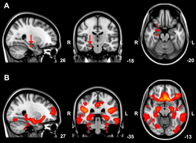 A) Brain areas showing reduced (arrows) grey matter volume in DLB compared to PD patients, overlaid on the MNI standard cerebral image with accompanying coordinates. Results with a threshold-free cluster enhancement (TFCE) family-wise error corrected p-value < 0.05 are shown. B) Grey matter structural covariance posterior cingulate cortex network, overlaid on the most informative slices of the MNI standard cerebral image with accompanying coordinates. Arrows indicate the parahippocampal gyrus and hippocampus.