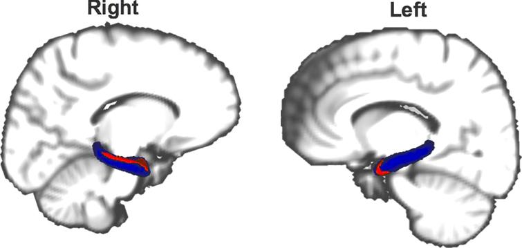 Atrophy (red) of the hippocampus (blue) in DLB compared to PD patients. Results with Family-wise error corrected p-value < 0.05 are shown. The reader is referred to the web version of this article for interpretation of the references to color in this figure legend.