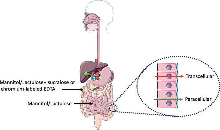 Evaluation of intestinal permeability. Urinary excretion of orally ingested non-metabolizable sugars of different sizes provides a reliable non-invasive in vivo read-out of intestinal barrier function. The mannitol/lactulose ratio evaluates the changes in permeability in the small intestine. Changes in the colon permeability is assessed with the addition of either sucralose or chromium-labeled EDTA. At the cellular level, there are two routes for transport of molecules and ions across the epithelium of the gut: across the plasma membrane of the epithelial cells (transcellular route) and across tight junctions between epithelial cells (paracellular route). This figure was created using Servier Medical Art, licensed under the Creative Commons Attribution 3.0 Unported License.