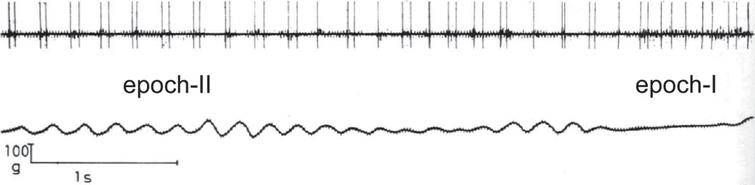 Abnormal motor unit firing pattern in a patient. A motor unit from the first dorsal interosseous muscle was recorded when the patient was trying to exert a constant force with his finger against a strain gauge. Rhythmical doublets or doublets interchanged with single discharges characterize the interval of overt tremor (epoch-II). Note that the firing pattern is more regular and the rate (around 10–12 spikes/s) does not change appreciably when the tremor subsides (epoch-I; from [43]; Fig. 4, with kind permission).