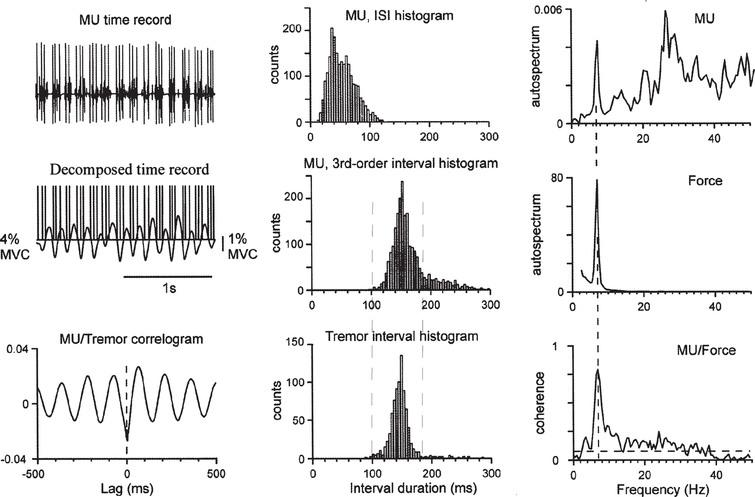 """Quantification of motor units synchronization and firing patterns. Left panels: the motor unit (raw and decomposed traces, intrinsic rate 19 spikes/s) fires triplets and doublets at the tremor frequency (7Hz; first dorsal interosseous muscle in a patient). The cross-correlogram shows that doublets/triplets occur mostly around the tremor minima (i.e., """"phase-locked to tremor""""). Middle panels: The main peak of the first order interspike interval histogram (MU-ISI, uppermost) represents the short ISIs between triplets and doublets (about 40ms). The incidence of triplets (here approximately 80%) approximately equals the fraction of the third-order intervals (middle histogram, vertical dashed lines) spread over the distribution of the tremor period (lowermost). Right panels: The average synchronization between pairs of motor units in the muscle is quantified by estimating the coherence between autospectra of this motor unit firing and force tremor. Strong correlations occur at the tremor frequency (vertical dashed line). The horizontal dashed line shows the significance limit. MU, motor unit; MVC, maximal voluntary contraction (modified from [44]; Fig. 3, with kind permission)."""