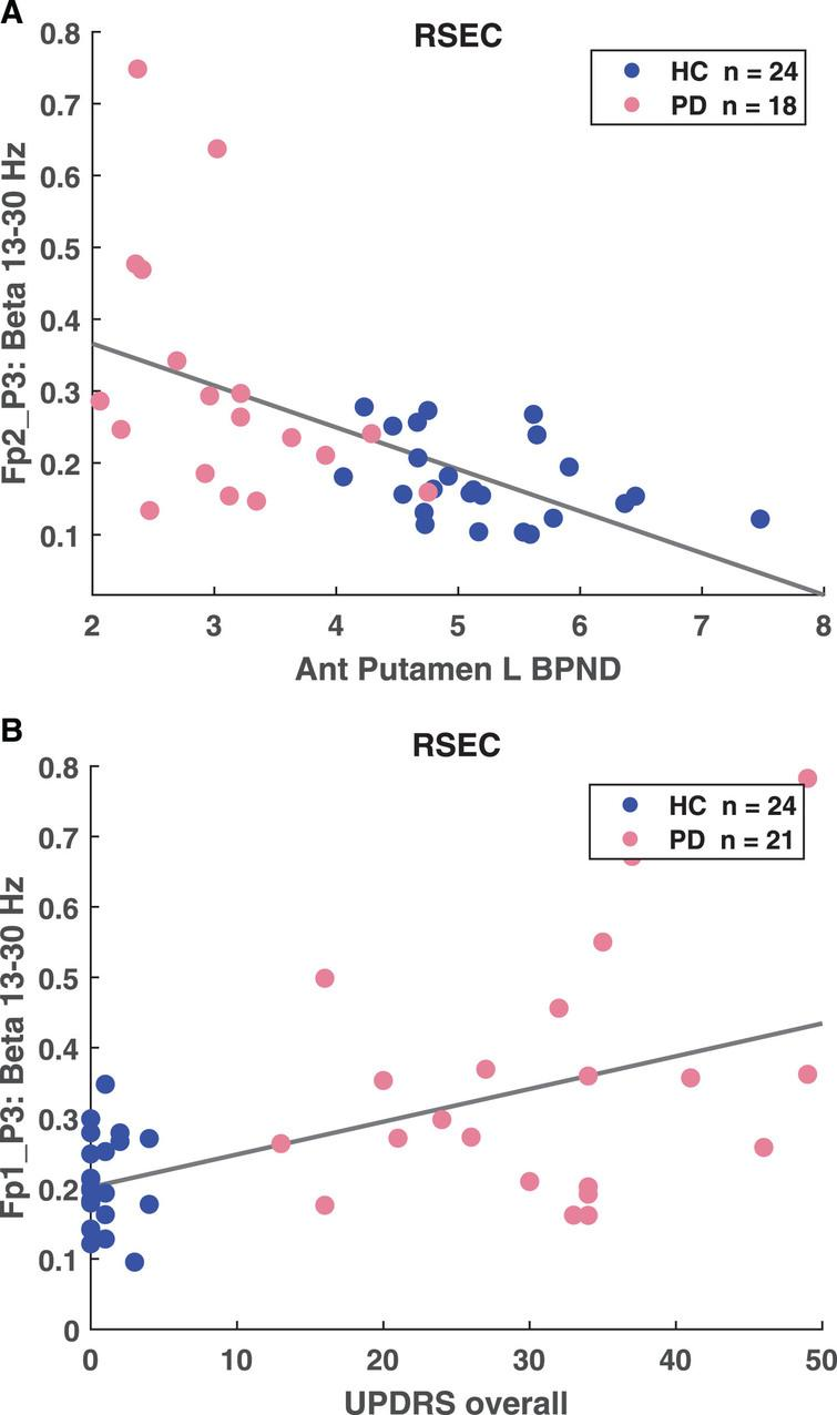 A) Correlation between anterior putamen left BPND and FP2-P3 high beta coherence (p = 1.53E–.04, r =–0.552). B) Correlation between UPDRS overall and FP2-P3 high beta coherence (p = 6.96E–05, r = 0.557).