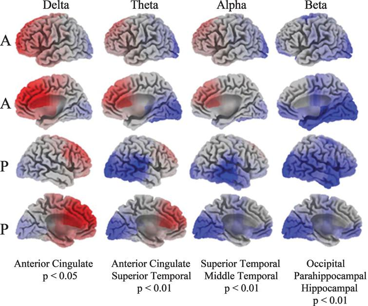 Current density images in Talairach space obtained by sLORETA in PD versus HC cohorts (A: anterior, P: posterior). EEG activity differences are denoted by red (increased activity) or blue (decreased activity).