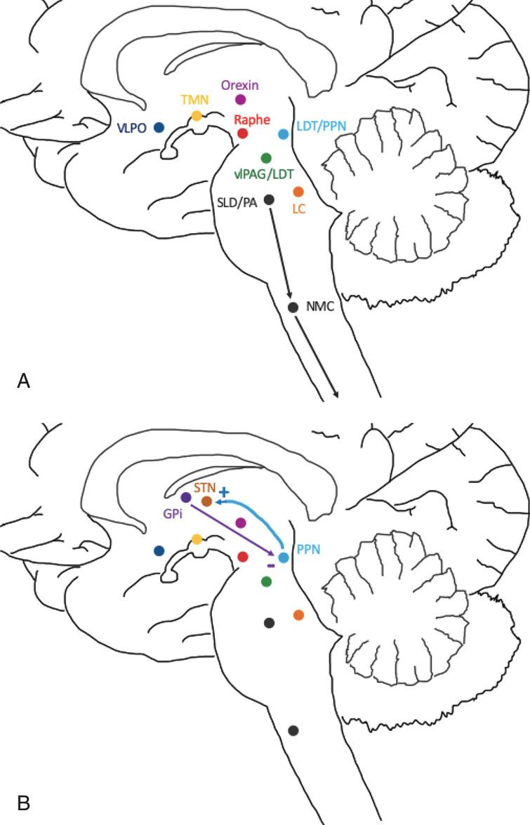 Areas of sleep-wake control and proposed connection to DBS targets: STN and GPi. A) Wakefulness is promoted by the excitatory interaction between orexin, locus coeruleus (LC), precoeruleus area (PA), raphe nucleus, ventral periaqueductal gray matter (vlPAG), tuberomammillary nucleus (TMN) and pedunculopontine tegmental nuclei (PPN). Sleep is induced by the ventrolateral preoptic area (VLPO) which inhibits the above nuclei. During REM, the sublateral dorsal nucleus (SLD), PA and PPN inhibit the lateral pontine tegmentum (LPT) and vlPAG. The SLD and PA also inhibit spinal cord motor neurons via the nucleus magnocellularis (NMC) to promote REM atonia. B) The STN receives excitatory cholinergic projections from the PPN and may act as a relay for information regarding wakefulness and REM sleep. The GPi sends inhibitory GABA projections to the PPN, likely reducing wakefulness and suppressing REM sleep.