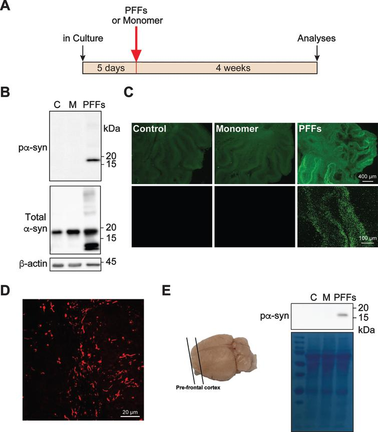 Exogenous PFFs induce pα-syn accumulation in cerebellar slice culture. A) Timeline for the experiment. B) Rat cerebellar slices were treated with PFFs, α-syn monomer (M) or untreated (C). Four weeks after the treatment, slices were lysed and the presence of pα-syn, total α-syn and β-actin were detected by immunoblot analyses. C) Representative epifluorescence (top panel) and confocal images (bottom panel) of pα-syn in slices that were untreated, α-syn monomer or PFF-treated for 4 weeks. Scale bars represent 400 μm (top panel) and 100 μm (bottom panel). D) A representative high magnification image of pα-syn in PFF-treated slice. Scale bar represents 20 μm. E) The schematic of brain slices prepared from pre-frontal cortex (PFC) is on the left. The mouse PFC slices were treated with PFFs, α-syn monomer (M) or no treatment (C) for 4 weeks and the accumulation of pα-syn was detected by immunoblot analysis. Equal loading was verified by Coomassie Blue stain of the blot.