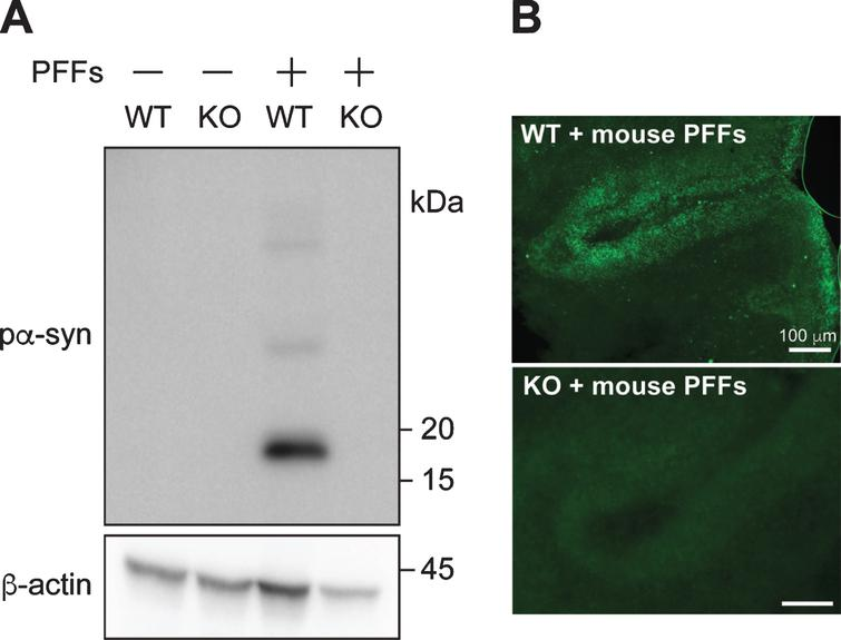 PFF-induced pα-syn is derived from endogenous α-syn. A) Cerebellar slices from wild-type (WT) or α-syn knock-out (KO) mice were treated with or without PFFs for 4 weeks. The presence of pα-syn and β-actin were detected by immunoblot analyses. B) Immunofluorescence staining of pα-syn in wild-type (WT) or α-syn knock-out (KO) cerebellar slices treated with mouse PFFs as indicated. Scale bar represents 100 μm.