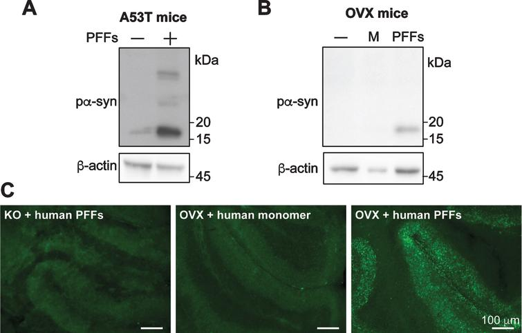 Human α-syn PFFs induce pα-syn accumulation in cerebellar slices prepared from transgenic mice expressing human α-syn transgene. Cerebellar slices were prepared from transgenic mice expressing human α-syn carrying A53T mutation (A) or wild-type α-syn (B). Slices were treated with human α-syn PFFs (PFFs), human α-syn monomer (M) or untreated (–). Four weeks after the treatment, the presence of pα-syn in these slices was determined by immunoblot analysis. C) Immunofluorescence staining of pα-syn in cerebellar slices prepared from transgenic mice overexpressing wild-type α-syn (OVX) or α-syn knock-out mice (KO) that received human α-syn PFFs or monomer treatment as indicated. Scale bar represents 100 μm.