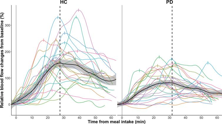 Relative smoothed postprandial superior mesenteric artery blood flow changes in healthy controls (HC) and participants with Parkinson's disease (PD). Relative blood flow changes from baseline are calculated as (BF –Baseline BF) * Baseline BF * 100 %. Curves are fitted to the individual time series of blood flow measurements using local polynomial regression fitting with a 25%smoothing span. The black curve with shaded areas marks the mean and standard error for the PD group and the healthy control group, while the vertical dotted line marks the median for the maximal blood flow measurements of each group. The vertical dashes mark the maximal blood flow for each subject.