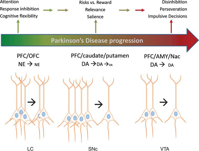 Impact of catecholamine cell body loss in Parkinson's disease on noradrenergic and dopaminergic signaling in cortical and subcortical regions and executive functions. A schematic of Parkinson's progression is presented by the arrow, wherein intact functions (green color) in executive function (EF) are subserved by an intact population of cell bodies to the left of the arrow for each cell body region depicted; locus ceruleus (LC), substantia nigra pars compacta (SNc), and ventral tegmental area (VTA). As loss of these neurons begins at the early (and likely prodromal) stages of the disease (depicted in color by transition between green and red in the Parkinson's progression arrow), progressively less neurotransmitter (norepinephrine (NE) and dopamine (DA)) is released in the targeted cortical (prefrontal (PFC) and orbitofrontal (OFC)) and subcortical (caudate, putamen, amygdala (AMY), and nucleus accumbens (NAc)) regions. In turn, these deficits in NE and DA release lead to deficits in EF, including decreased ability to inhibit choices that lead to disadvantageous outcomes, impaired attention to relevant stimuli associated with advantageous outcomes, impairment in recognizing reward saliency, and perseveration in decision-making that leads to disadvantageous outcomes.