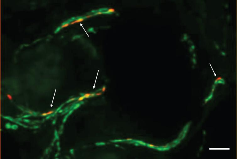 Photomicrograph of a double-immunofluorescence staining with anti-phospho-alpha-synuclein (red, Covance, 1:500) and anti-protein-gene-product 9.5 (axonal marker, green, Zytomed Systems, 1:1000) of a skin biopsy of a patient with iPD. The biopsy was fixed with 4%paraformaldehyde prior to cryopreservation and 20-μm-sections were cut. Arrows indicate intraaxonal phospho-alpha-synuclein depositions. In samples of controls, no p-alpha-syn-positive depositions would be visible. Bar=20μm.