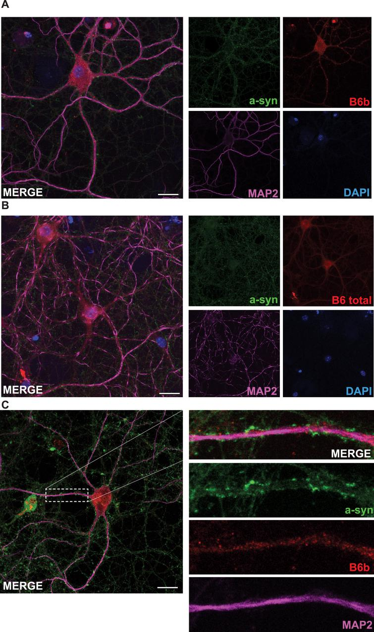 DNAJB6b and total DNAJB6 are expressed in primary neurons. Fixed primary mouse neurons stained with anti-DNAJB6b (A) or anti-total DNAJB6 (B) as well as anti-MAP2, anti-α-syn and dapi and fluorescently labeled anti rabbit Alexa 488 and anti sheep Cy5 antibodies. C) Depicts a close up picture of a dendrite stained with antibodies against α-syn, MAP2, and DNAJB6b as well as secondary fluorescently labeled anti-rabbit and anti-sheep antibodies.