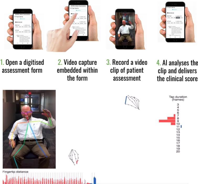 Example of Kelvin, a platform that allows the user to record 2D videos of patients with PD on any accessible device, and an inbuilt AI system will analyse the clip and denote scores according to items of the UPDRS. Reproduced with permission.
