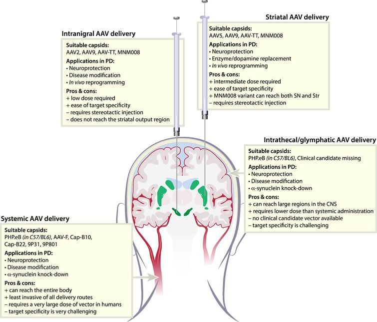 Delivery routes and suitable AAV variants for gene therapy in Parkinson's disease. To target the basal ganglia, AAV vectors can be delivered through four different routes; Intranigral, striatal, intrathecal, or systemic. All routes have advantages but also present challenges. Fortunately, we now have engineered AAV-vector capsids suitable for most routes.