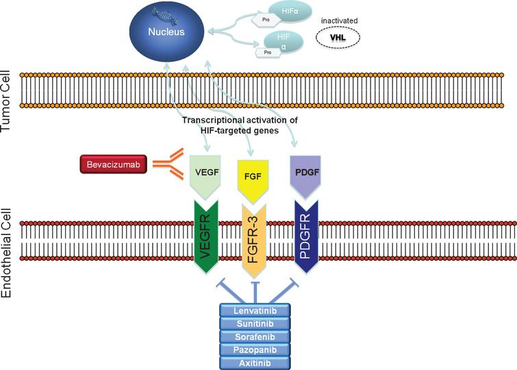 Renal cell carcinoma's disease biology: inactivated VHL gene leads to overexpression of HIF. Genes activated by HIF transcript growth factors such as VEGF, PDGF and FGF.