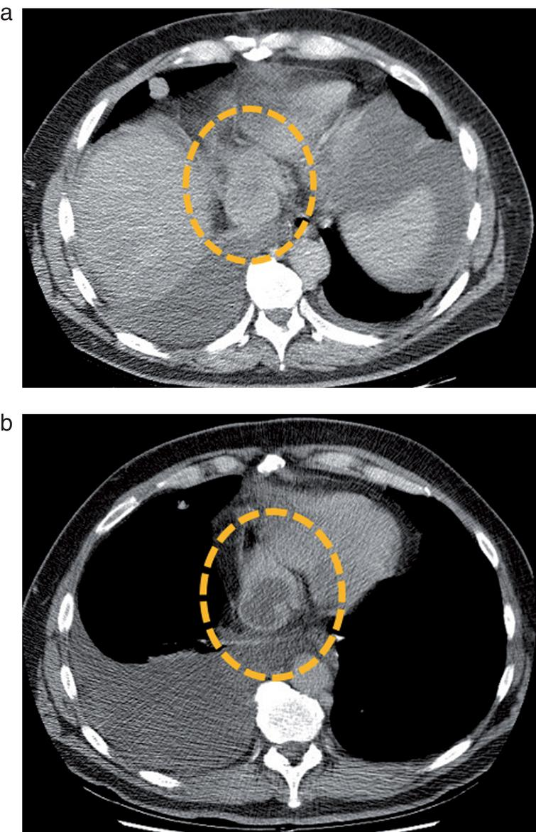 Metastatic mediastinal lymph node of a clear cell RCC before (a) and after (b) a single cycle of treatment by sunitinib. The lymph node (dotted circle) enhances homogeneously before therapy, but presents a central devascularized portion after treatment administration. Based on these observations, several teams tested Choi criteria in mRCC.