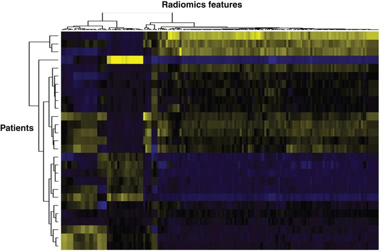 Heat map based on radiomics features extracted from mRCC patients. Vertically is represented each patient, horizontally each radiomics feature. Such heat maps allow separating patients according to common radiomics profiles, which are then correlated to a given outcome.