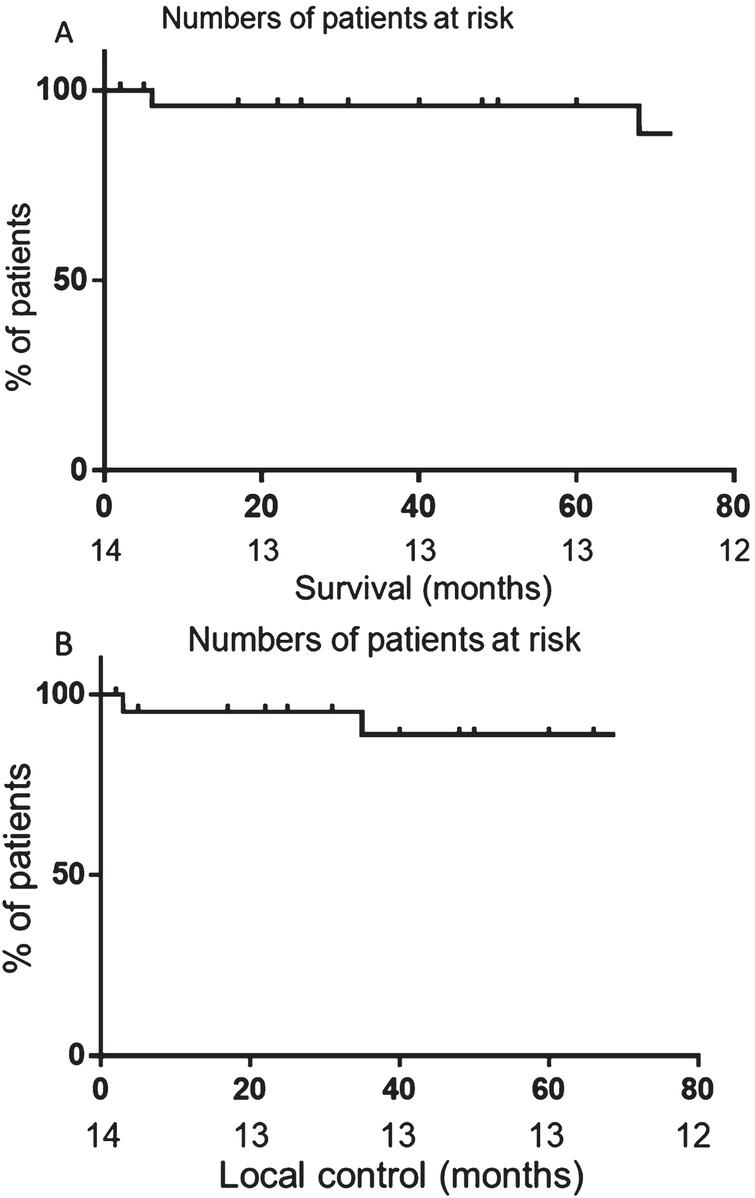 Disease control after radiotherapy. A) Overall survival of patients treated with radiotherapy. B) Local control after treatment with radiotherapy. Censored subjects are noted by a dash on the graphs.