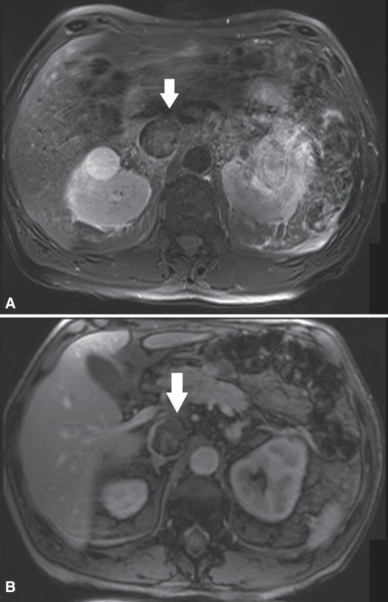 (A) In this patient with a left sided tumor and level 2 thrombus, the T2-weighted MR images showed loss of high signal intensity at the medial/ventral side of the vena cava wall (white arrow) suspicious for IVC wall invasion. (B) The corresponding DCE sequence showed evident loss of vein wall signal (white arrow) supporting the suggestion of IVC wall invasion. Surgical findings confirmed medial/ventral IVC wall invasion.