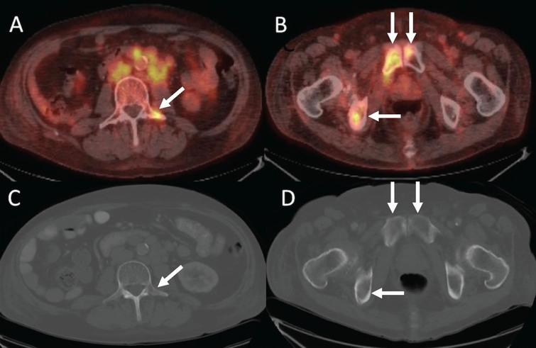 42-year-old man with metastatic renal cell carcinoma. Baseline PET/CT imaging shows osseous metastases at (A) L3 (arrow) and (B) in the pubic bones (arrows). CT does not show the metastatic lesions at L3 (C, arrow) or in the pubic bones (D, arrows).