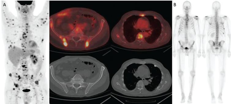 66-year-old man with metastatic renal cell carcinoma. (A) FDG-PET/CT shows numerous foci of intense FDG uptake in the bones. While some lesions have corresponding lytic lesions (bilateral iliac bones and see Fig. 4), the extent of FDG uptake is greater than the lucencies and others have no CT correlate (e.g., sternum, T7). (B) Bone scan significantly underestimates the amount of metabolically active bone metastases.