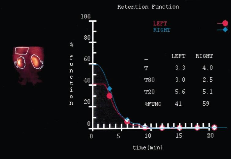 Deconvolution analysis of peak concentration time (MAG 3 renal scan): After partial nephrectomy in cold ischemia, the function of the operated left kidney is decreased due to loss of volume. The function of the remaining parenchyma, however, is not impaired (ref.8).