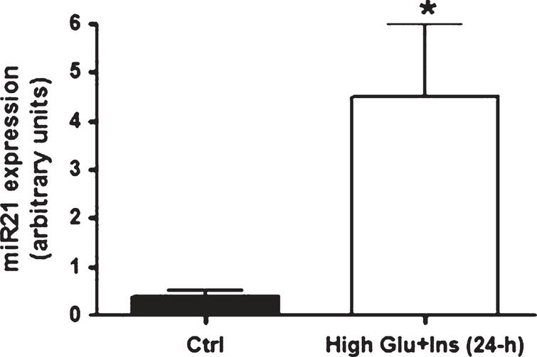 miR21 expression levels in primary human adipocytes after 24-h exposure to high glucose and high insulin concentrations. miR21 expression up-regulation in mature adipocytes (at ten days after differentiation induction) after 24-hour exposure to high glucose (20 mmol/L) and high insulin (104 lU/mL) concentrations.