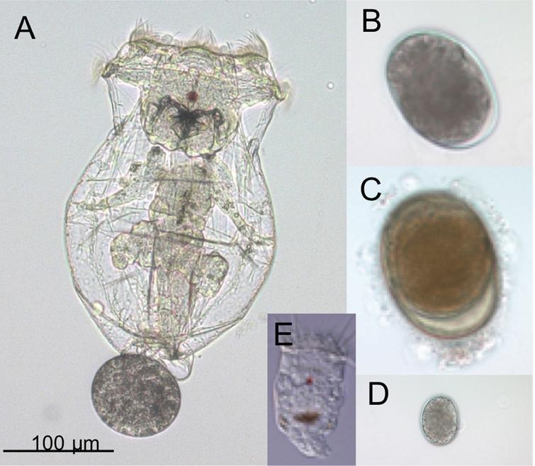 Adults and eggs of the rotifer Brachionus manjavacas. (A) Female B. manjavacas carrying one egg. Females have apical cilia for swimming and feeding, a red eyespot used for sensing light; and digestive, reproductive, muscle, and nervous systems visible through a transparent body wall. (B) Amictic egg, produced asexually via mitosis, which will hatch into an asexual female. (C) Dormant resting egg, the product of sexual reproduction. (D) Small egg that will hatch into a male; (E) Male, with cilia for swimming and red eyespot, but no mouth or gut. Males are one-third the size of females and are haploid.