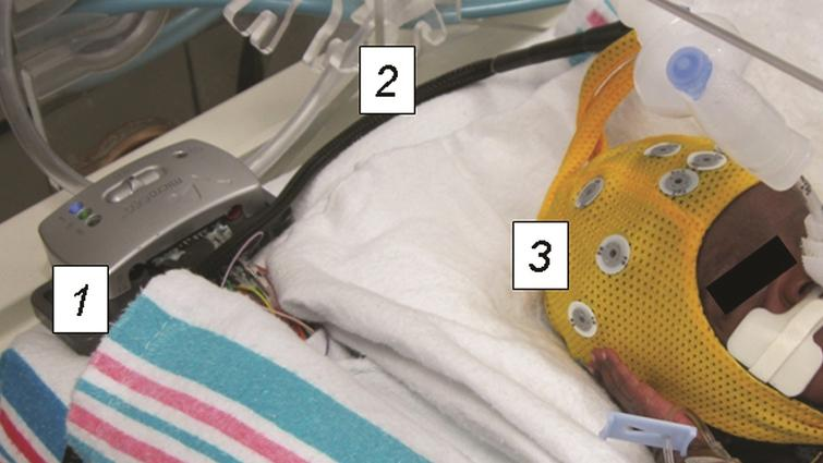 Preterm infant undergoing wireless EEG recording. The recording equipment is contained entirely within the isolette. The device transmits EEG recordings wirelessly to a bedside computer in real time. 1) Wireless EEG recording device 2) Connector cable 3) Electrode cap.