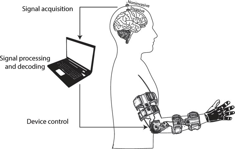 General diagram of a brain-machine interface for upper-limb motor rehabilitation. During the BMI therapy, the patient with upper-limb paralysis would be asked to imagine/attempt to move his/her paralyzed arm, and those intentions would be translated into the actual movement of the patient's limb. The activity from the brain is recorded with noninvasive or invasive electrodes. Then, it is processed in a computer that extracts relevant features and decodes information from the imagined/attempted motor task, based on a calibration procedure performed with previously-recorded examples of movement imaginations/attempts. The information decoded from the brain activity is translated into control commands for the robotic or prosthetic device, which mobilizes the paralyzed limb of the patient, exciting his/her afferent pathways.