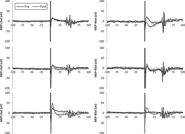 Representative motor evoked potentials (MEPs) from subject 5. Single MEPs from before and after transcutaneous spinal direct current stimulation (tsDCS) are shown for each leg and condition.