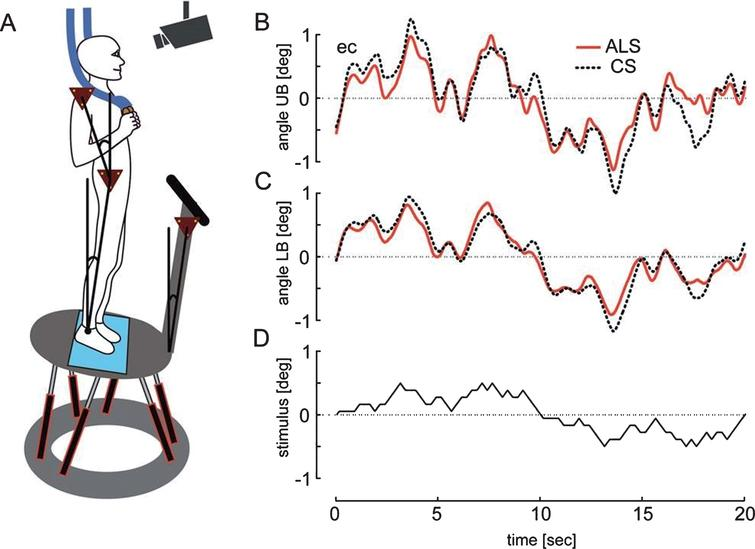 (A) Schematic representation of the experimental setting. B-D show an averaged time course of ALS patients' and control subjects' (CS) upper (B) and lower body (C) during platform tilts with the stimulus profile presented in D.