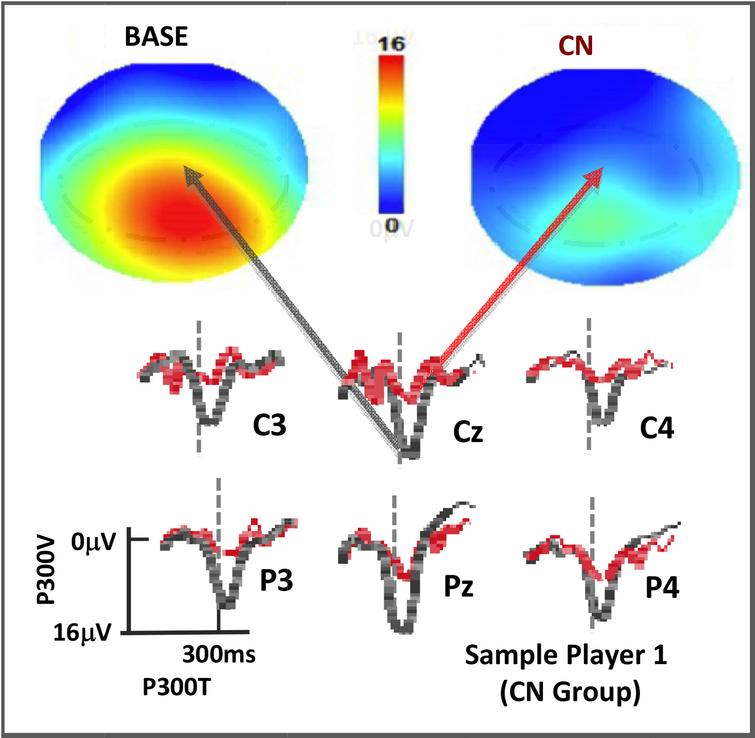 P300 rare tone depths for a player at BASE and CN displayed as topographs (top, with color scale as shown) and as voltage plots for the C-P region of interest (below, with black at BASE and red at CN). Vertical dotted lines are at 300msec post stimulus.