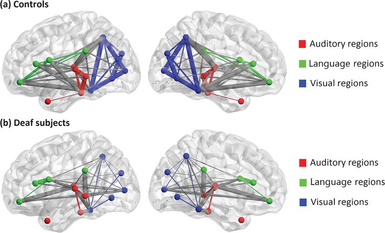 A 3D view of grey matter connectivity within and between auditory, language and visual systems in (a) normal controls and (b) deaf subjects. The lateral and medium views are shown. The nodes involved in auditory, language and visual processing are represented by red, green and blue respectively. The connections within each system are shown as the same color as the nodes, and the connections between these systems are present in grey color. Thicker edges indicate stronger connectivity, while thinner edges indicate weaker connectivity.