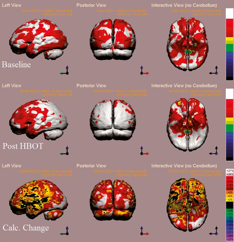 Case 1 SPECT calculated change after HBO2 compared to baseline. In the first two rows colors represent maximal functional brain activity relative to brain median activity, where in the bottom row colors represent the regional change in functional brain activity. White and red areas show the highest changes in CBF.