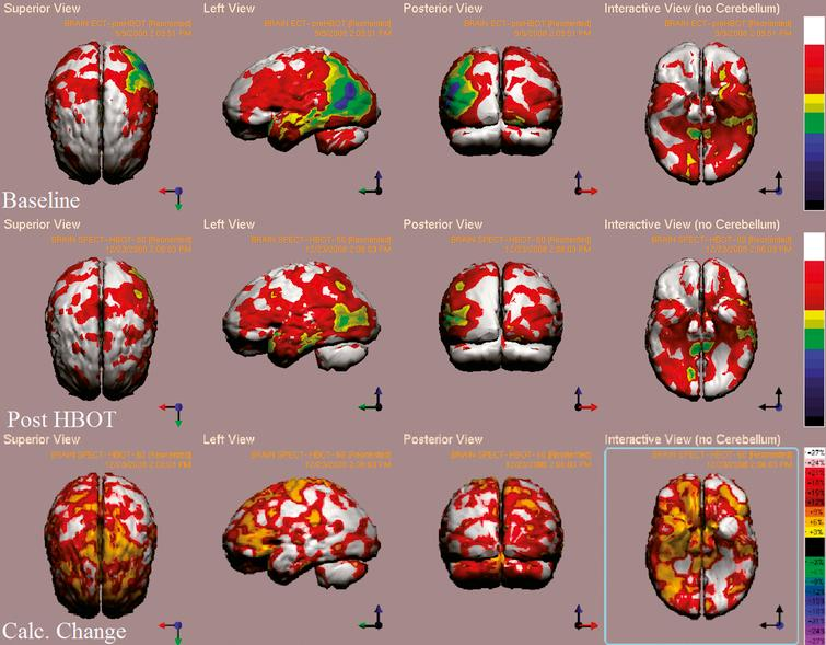 Case 2 SPECT calculated change after HBO2 compared to baseline. In the first two rows colors represent maximal functional brain activity relative to brain median activity, where in the bottom row colors represent the regional change in functional brain activity. White and red areas show the highest changes in CBF.