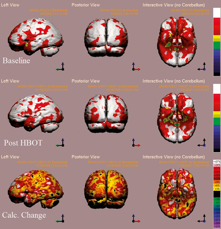 Case 4 SPECT calculated change after HBO2 compared to baseline. In the first two rows color represent maximal functional activity relative to brain median activity, where in bottom row colors represent the change in regional brain activity. White and red areas show the highest changes in CBF. Executive function, verbal, visual spatial and memory indices improved from scores of 98, 88, 84, 69 to 111, 104, 104, 79 respectively.