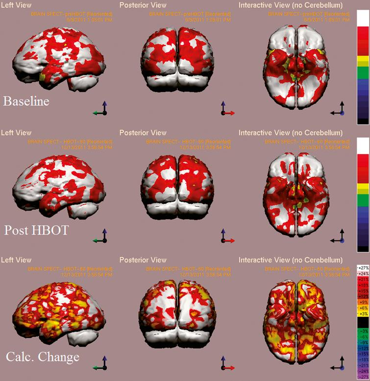 Case 5 SPECT calculated change after HBO2 compared to baseline. In the first two rows color represent maximal brain activity relative to brain median activity, where in the bottom row colors represent the change in regional brain function i.e. the change in metabolic activity. A global improvement of brain activity is demonstrated more accentuated in both occipital cortices. White and red areas show the highest changes in CBF. Executive function and attention indices improved from 44 and 38 to 62 and 59, respectively.