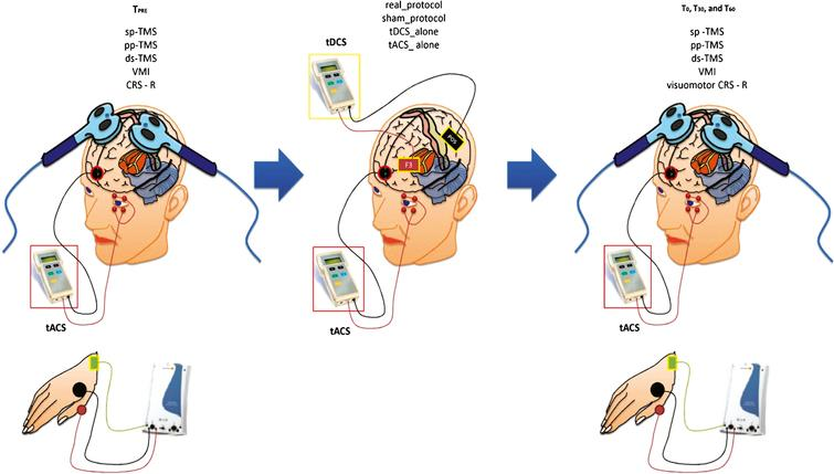 Summarizes the experimental design. We carried the clinical (CRS-R) and the electrophysiological measurements (single pulse – sp-, paired-pulse – pp-, dual-site – ds- TMS, and visuomotor integration -VMI) before (TPRE) and after (T0, T30, and T60) each conditioning protocol: real_protocol, sham_protocol, tDCS_alone, and tACS_alone.
