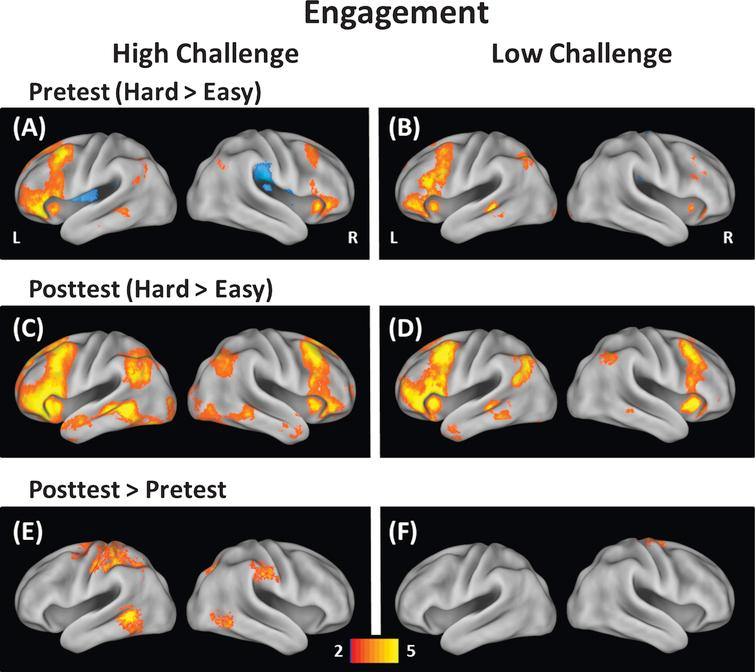 Modulation of brain activity was measured at easy and hard levels of difficulty for the High-Challenge group (left) and Low-Challenge group (right). The top panels (A & B) show modulation at pretest, the middle panels (C & D) show modulation at posttest, and the bottom panels (E & F) show modulation differences between pretest and posttest. The High-Challenge group exhibited increases in modulation of brain activity following the intervention in frontal, temporal, and parietal brain regions. In contrast, the Low-Challenge group only showed increases in modulation in one cluster (precentral gyrus).