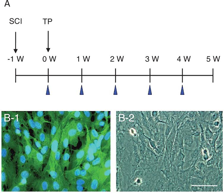 A: The time course of surgery and cell transplantation. Cell transplantation (TP) was performed 1 week after spinal cord injury (SCI). BBB scores were evaluated at the time points indicated with arrowheads. B: All CPECs cultured from GFP-transgenic rats are green-fluorescent (B-1). The same region is shown by phase-contrast microscopy (B-2). Scale: 50 μm for B-1 and B-2.