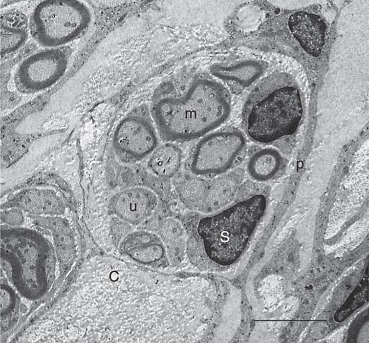 Conventional electron microscopy of axons in the astrocyte-devoid areas. 5 w-TP. This electron micrograph was taken from the astrocyte-devoid area of the spinal cord at 5 w-TP. Myelinated (m) and unmyelinated (u) axons are bundled, and surrounded by perineural sheaths (p). Axons are associated with Schwann cells (S). All these cellular components are embedded in the collagen fibril matrices (C). Scale: 5 μm.