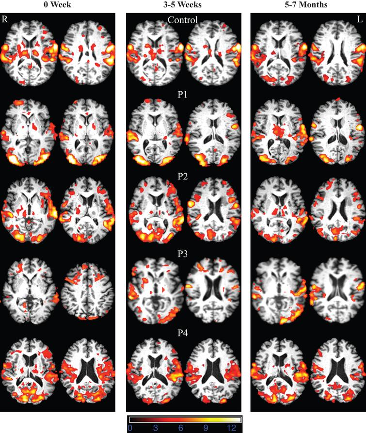 FMRI data registered in MNI space shows areas of activation associated with correct picture naming (phonemic+word cued naming) compared to viewing scrambled pictures at 0W (acute time point), 3–5W (sub acute time point), and 5–7M (chronic time point) for the normal control and participants with aphasia. Z (Gaussianised T/F) statistic images were thresholded using clusters determined by Z > 3.0 and a (corrected) cluster significance threshold of P = 0.05. All images are shown in radiological convention (left in image is right in the brain).