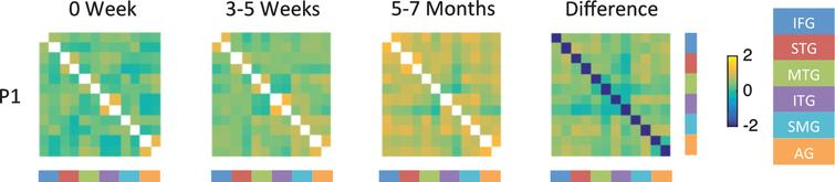 Fisher-transformed correlation matrix for the resting state data for P1 (who showed the most improvement) at each time point. Difference map shows the difference in correlation between the 5–7 month scan and the 0 week scan for the resting state data. Correlations were assessed across 12 ROIs in the language network corresponding to the left and right inferior frontal gyrus (IFG), superior temporal gyrus (STG), middle temporal gyrus (MTG), inferior temporal gyrus (ITG), supramarginal gyrus (SMG), and angular gyrus (AG).
